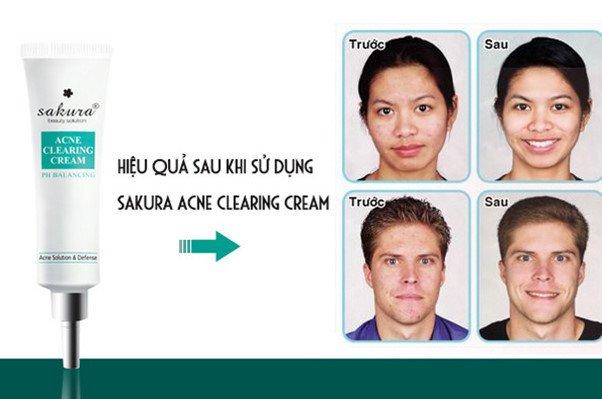 Những phương phápchăm sóc da khỏe đẹp mà chị em nên nằm lòng